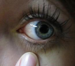 alergii-oculare