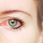 Ce facem cu ochii roșii?